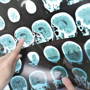 Misericordia to book thousands more CT scans a year